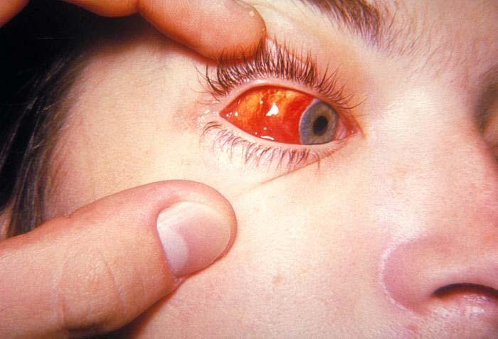 Acute Hemorrhagic Conjunctivitis  Symptomacom